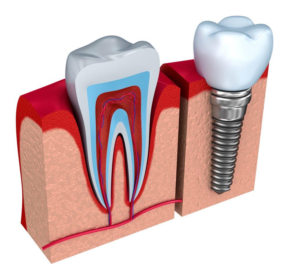 Leczenie implantologiczne – jak to rzeczywiście jest?