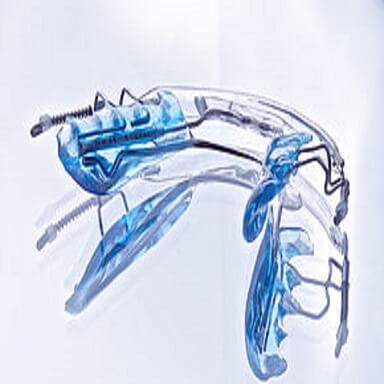 Ruchomy aparat Crear Inman Aligner