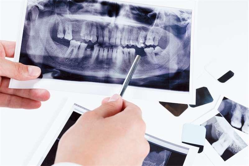 RTG zębów Kraków - profesjonalna pracownia radiologiczna w stolicy małopolski