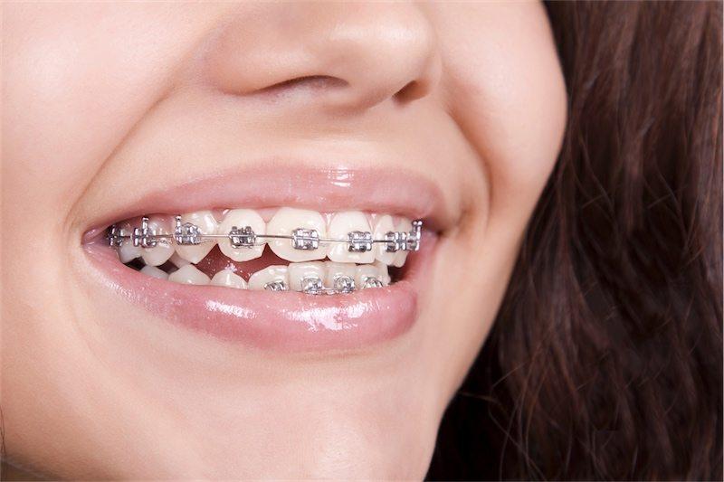 Aparaty ortodontyczne do piękny uśmiech na lata