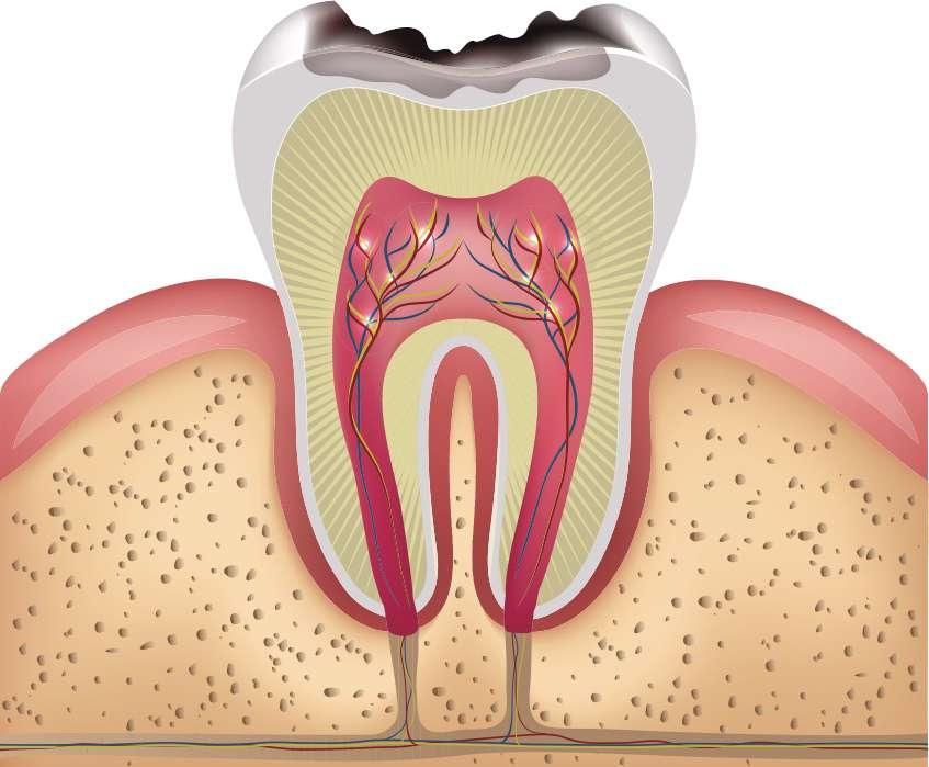 Przekrój zęba