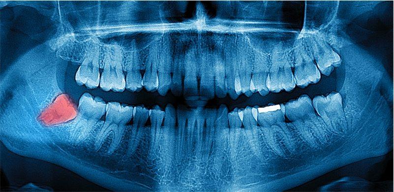Zdjęcie pantomograficzne - Rentgen stomatologiczny
