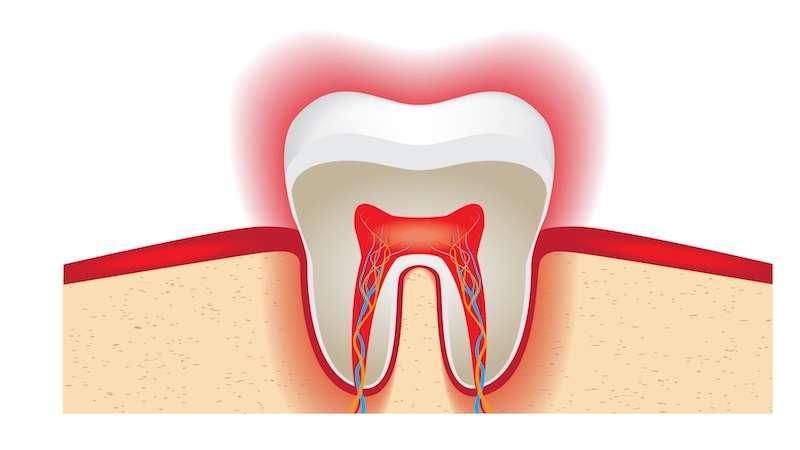 Bolący ząb jest podstawą do wizyty u stomatologa