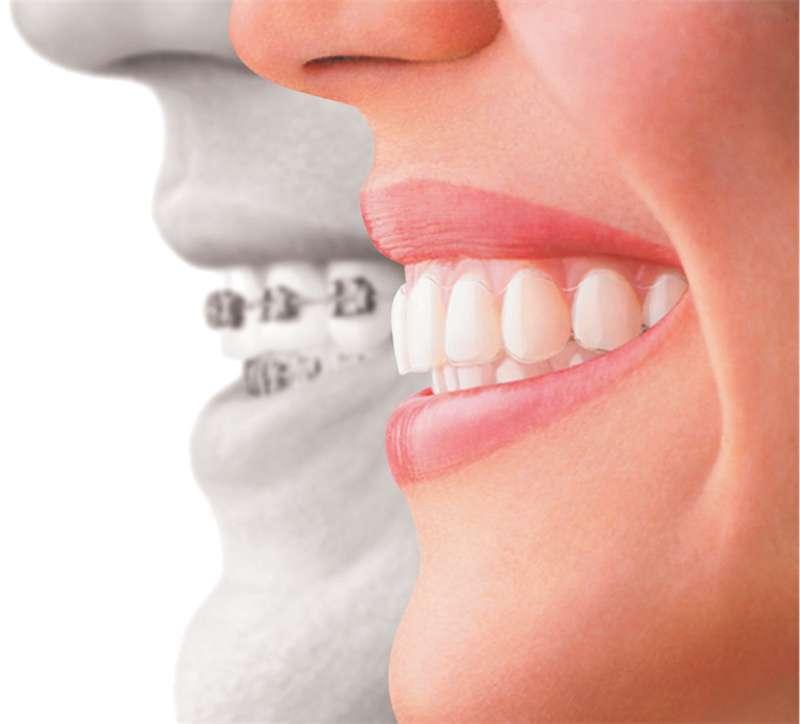 Proste zęby po leczeniu ortodontycznym - Klinika stomatologiczna Kraków